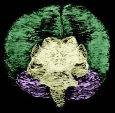 cervello-scansione